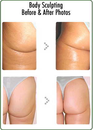 Microcurrent Body Sculpting
